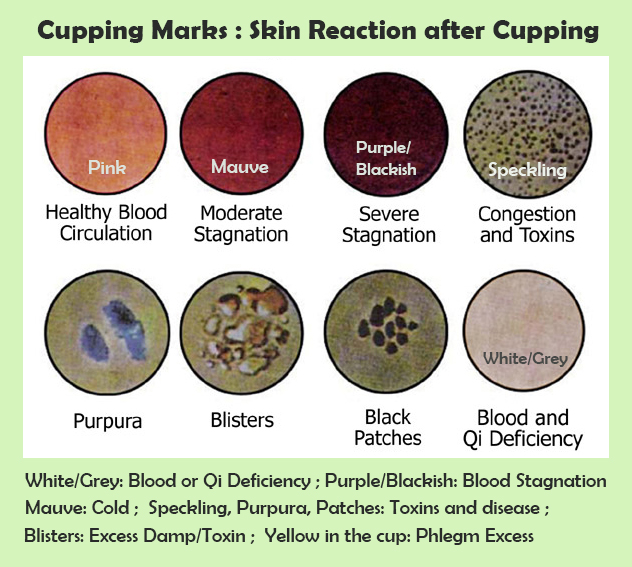 What Are Cupping Marks: Cupping